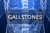 medical conditions gallstones