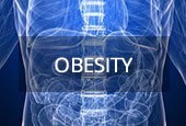 Upper GI surgery for obesity